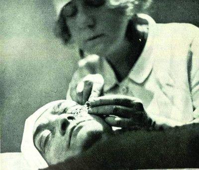 Suzanne practicó a cirugía estética para la corrección de ojos. Crédito: Masson et Editeurs